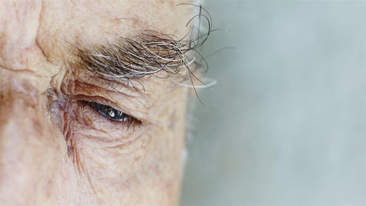 Homme atteint d'alzheimer