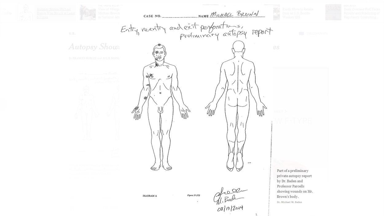 Extrait du rapport préliminaire du 17 août 2014 montrant le points d'entrée et de sortie des projectiles sur le corps de Michael Brown