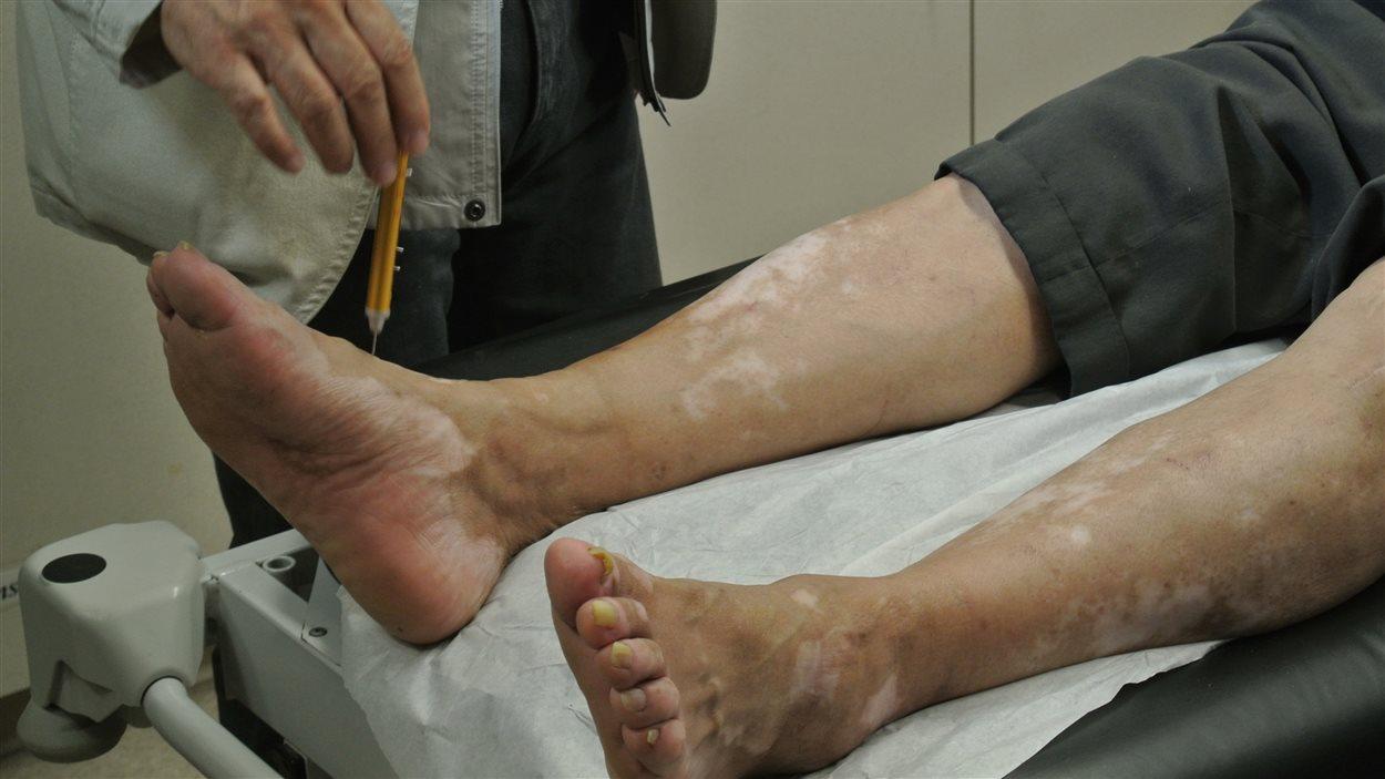 Le système nerveux des personnes qui souffrent d'incapacité en raison de la pollution au mercure est durement affecté. Le docteur Kazuhito Tsuruta évalue la sensibilité du patient à des objets pointus.