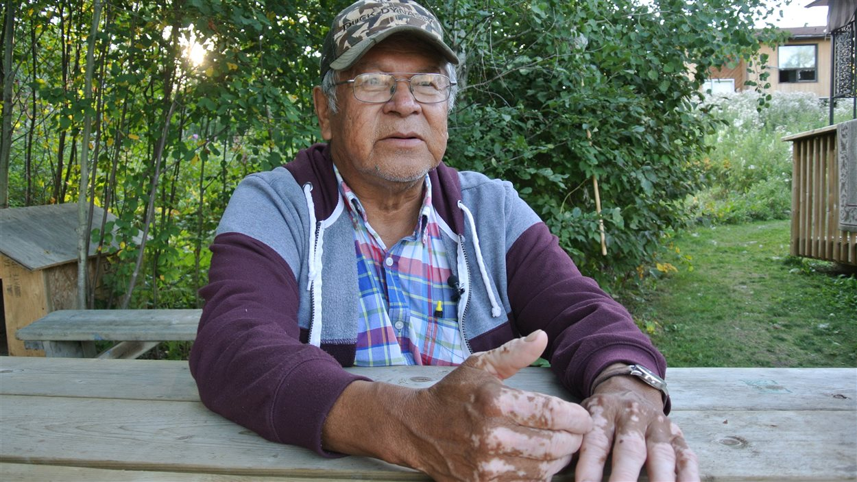 Bill Fobister est l'un des nombreux résidents de Grassy Narrows qui souffrent des effets de l'intoxication au mercure.