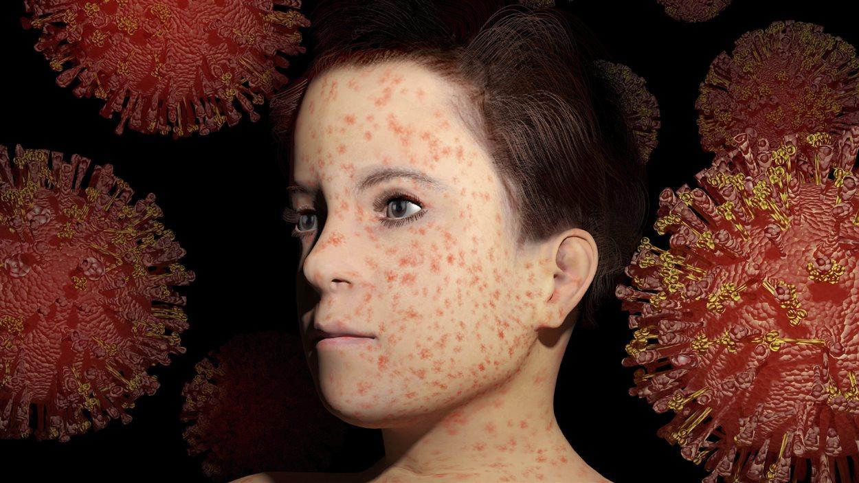 Un enfant atteint de la rougeole