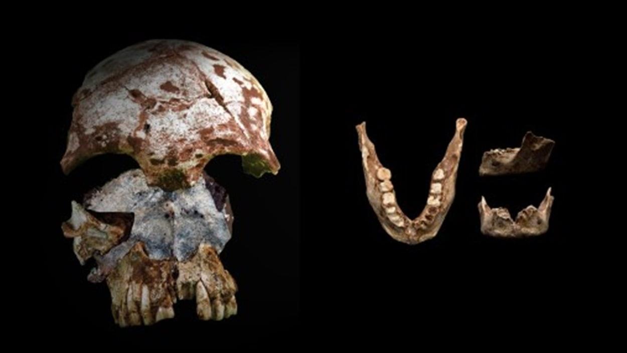 Le crâne et la mandibule