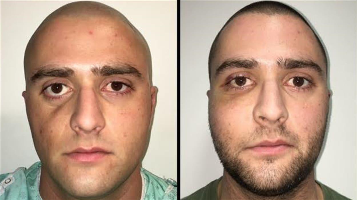 Une chirurgie plastique inédite a permis au patient de retrouver un visage sans cicatrice.