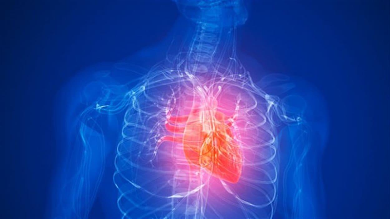 Dessin d'une crise cardiaque