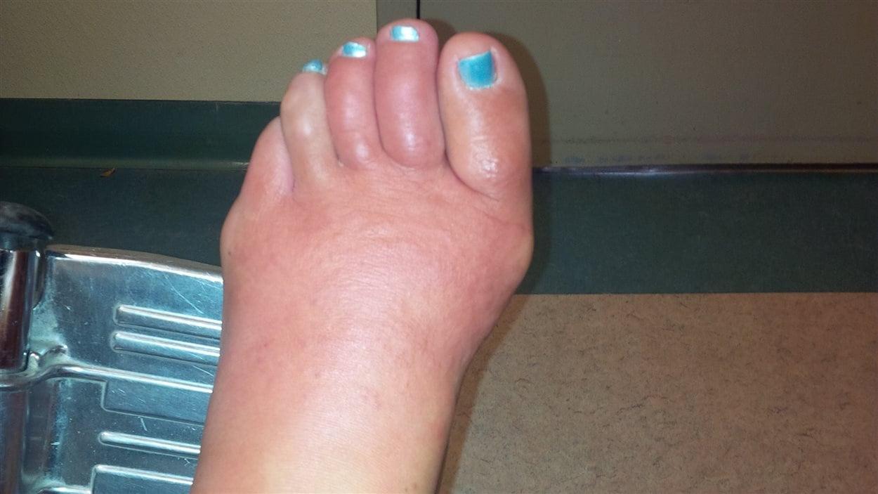 infection du pied