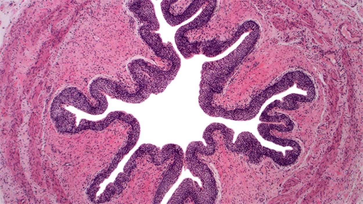 Coupe d'un uretère