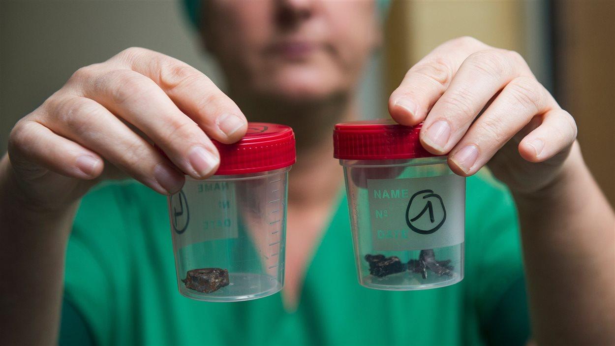 Une infirmière du campus Gasthuisberg de l'hôpital UZ Leuven, à Louvain, en banlieue de Bruxelles, montre des fragments métalliques d'une bombe retrouvés dans le corps de victimes des attentats du 22 mars.