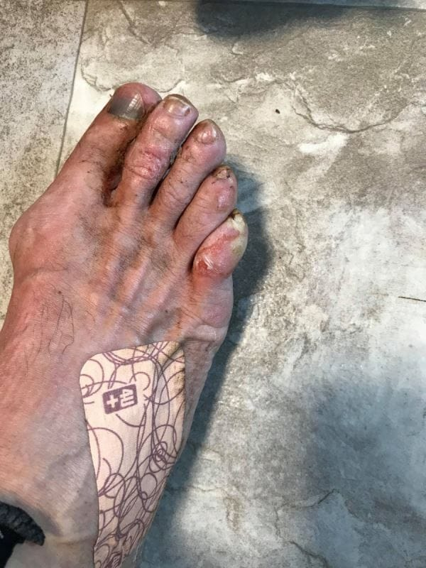 Un pied blessé