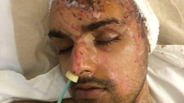 samir-hussain-visage